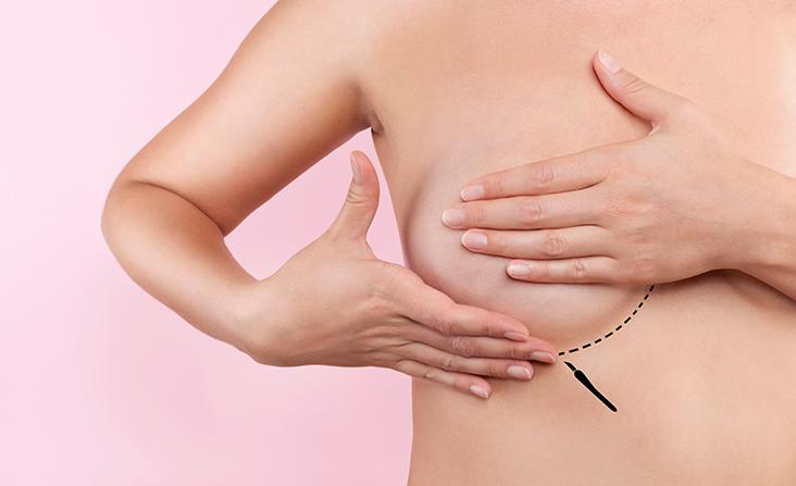 Foto-Cirurgias-mamarias